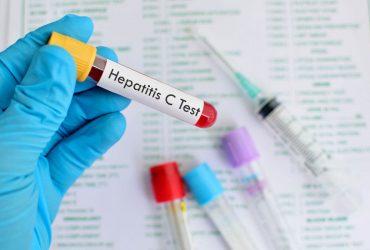La Ozonoterapia en la Hepatitis