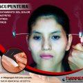 Cede Acupuntura – Medicina Tradicional Oriental (Cercado de Lima)